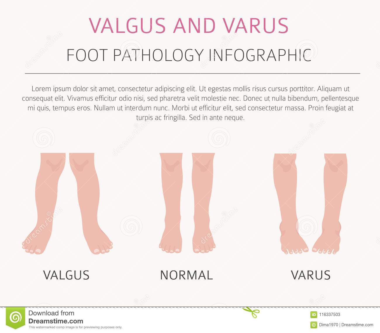 We Normally Sell Two A Day Today We Are Selling Up To 15: Valgus Stock Illustrations