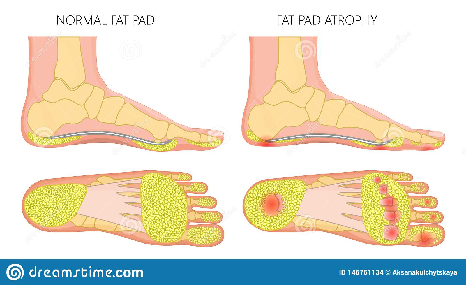 Foot fat pad atrophy stock vector. Illustration of balls ... Foot Diagram on foot odor, foot index, foot and ankle, foot pain, foot structure, foot schematic, foot problems, foot regions, foot type chart, foot outline, foot assessment form, foot tendons, foot cartoon, arches of the foot, joints of foot, foot parts, anatomical terms of location, foot muscles, foot side view, foot map, foot bones, foot drawing, fifth toe, foot toes,