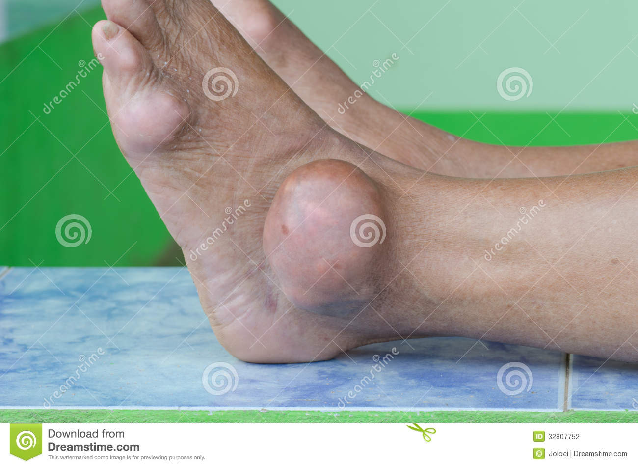 pictures of gout in the foot