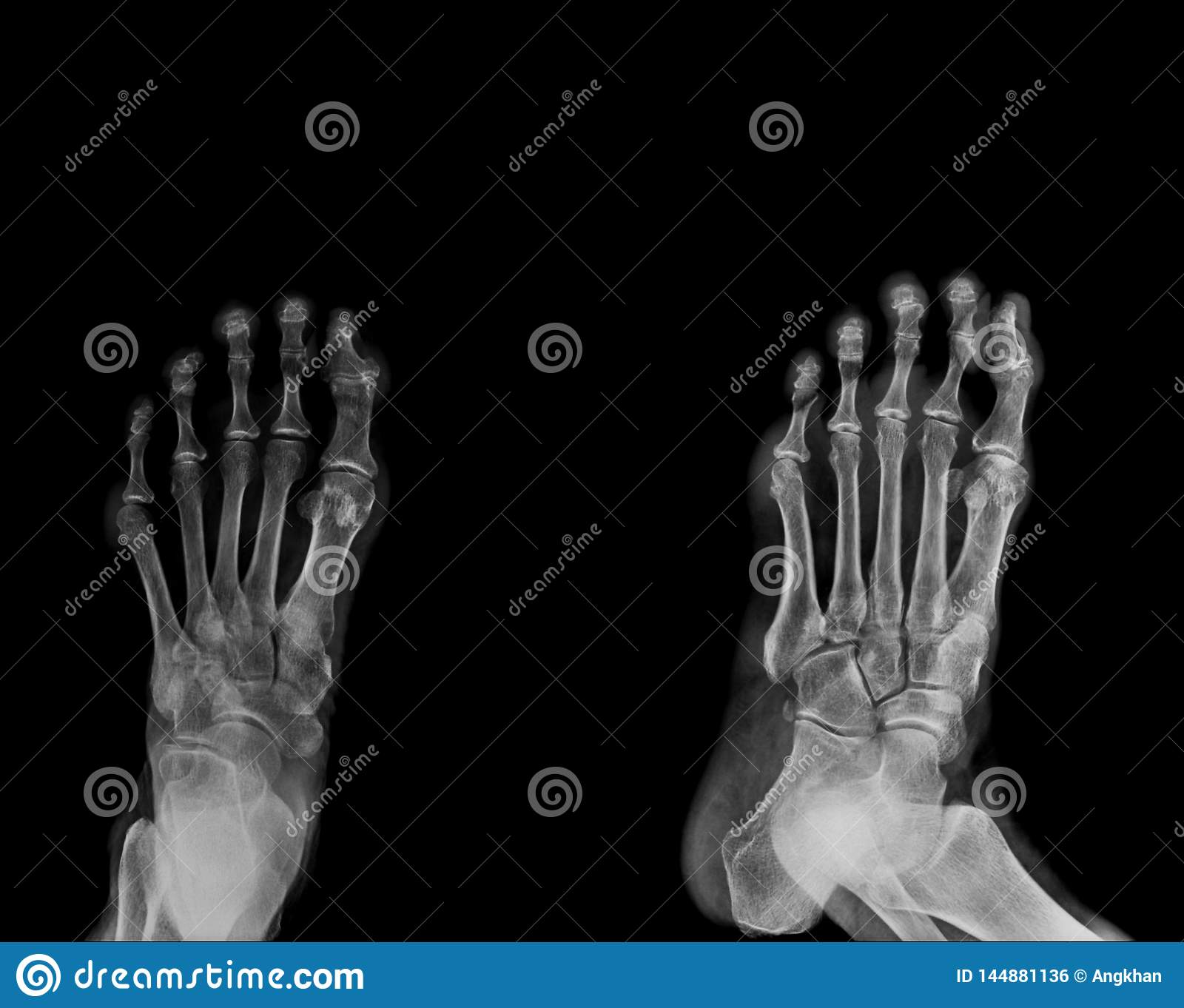Foot x-ray AP and lateral view