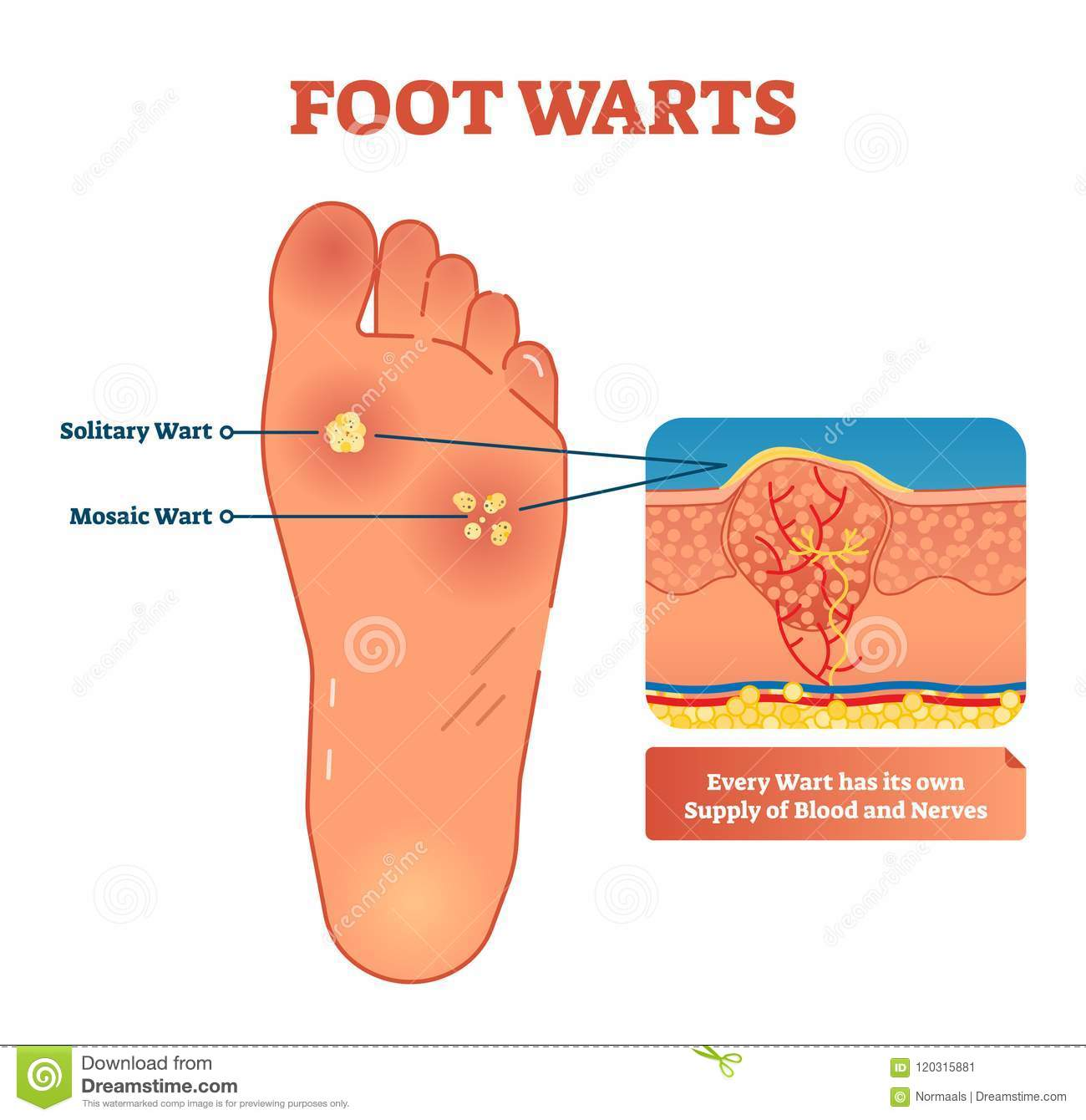 blister wart diagram 9 7 fearless wonder de \u2022 Anatomy of Wart foot warts vector illustration scheme with solitary and mosaic rh dreamstime com frozen wart stages frozen