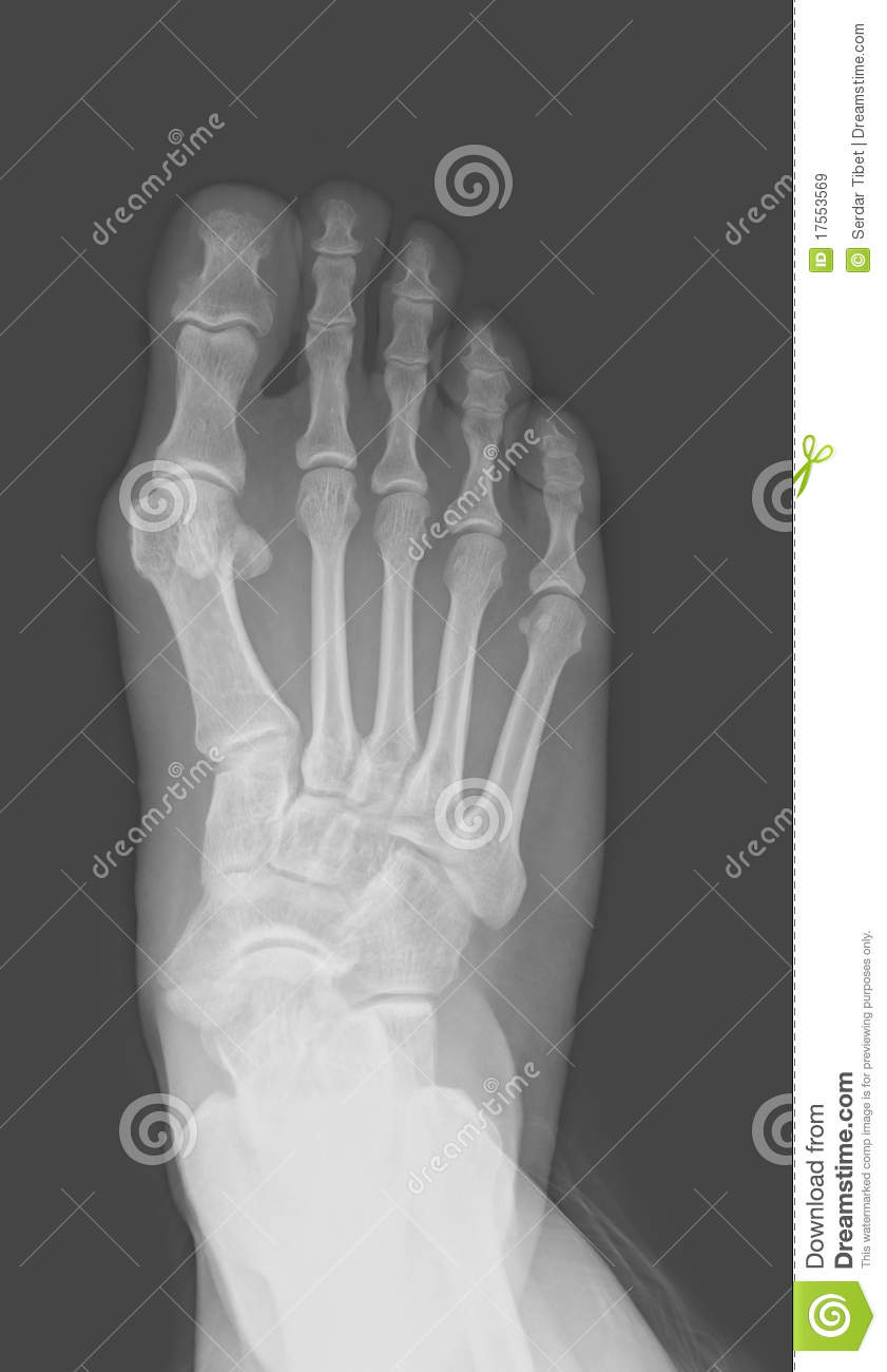 foot x-ray royalty free stock images
