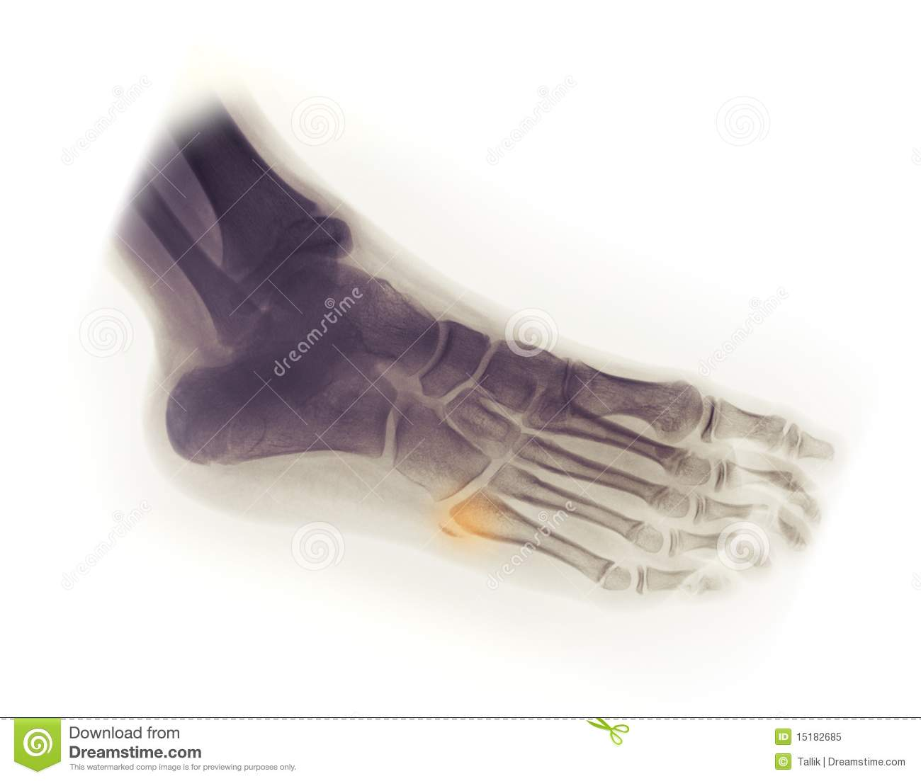 Foot X-ray, Avulsion Fracture Of 5th Metatarsal Royalty ...