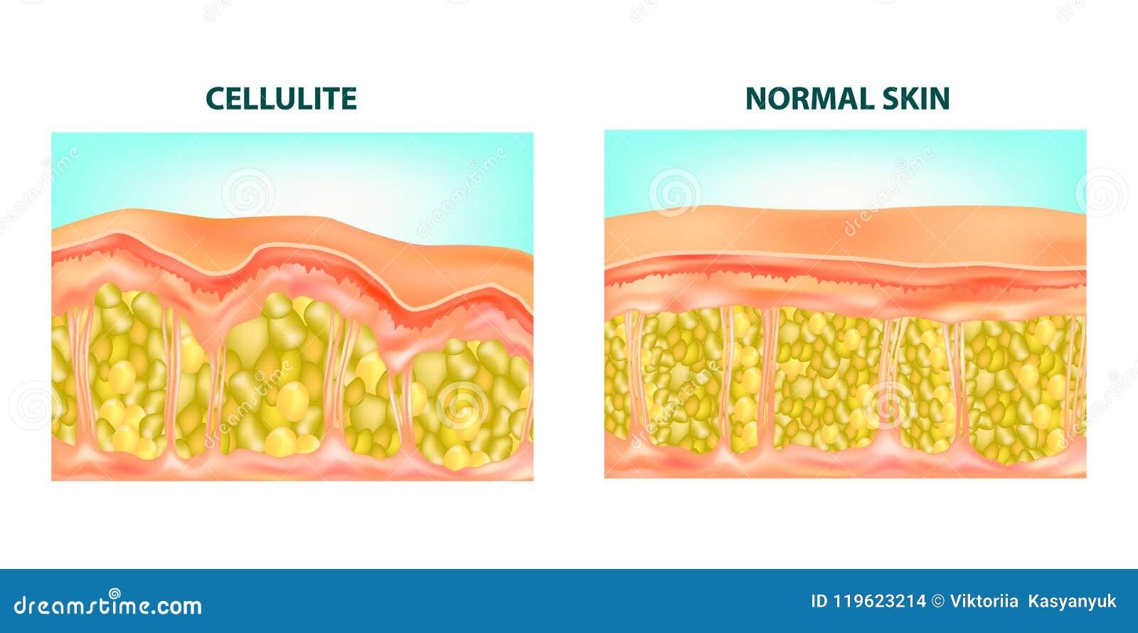 Formación de las celulitis