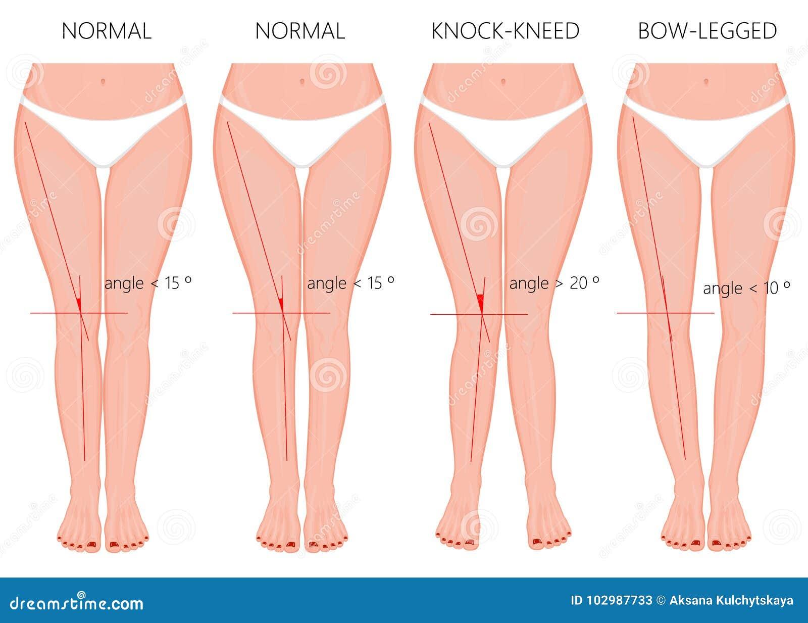 De rodilla arqueadas dolor con piernas