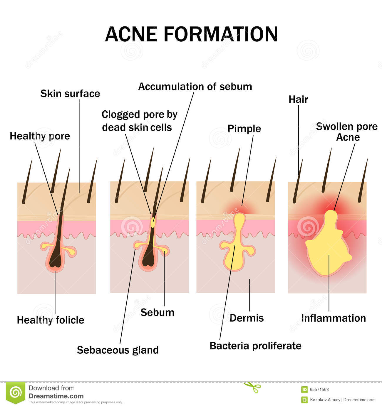 Formation Of Acne Stock Vector  Illustration Of Pimple