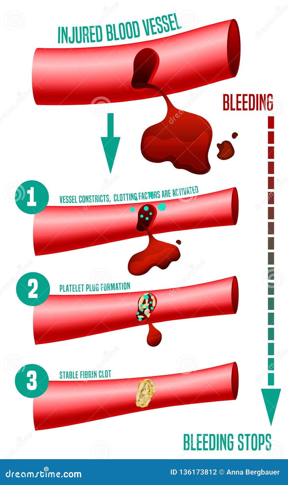 Formation de caillot sanguin