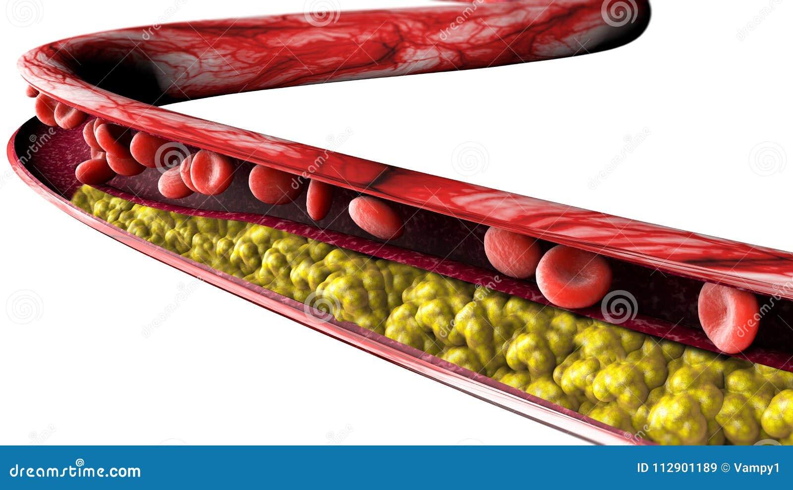 Formation de cholestérol, grosse section 3d d une artère, d une veine et des globules rouges, coeur