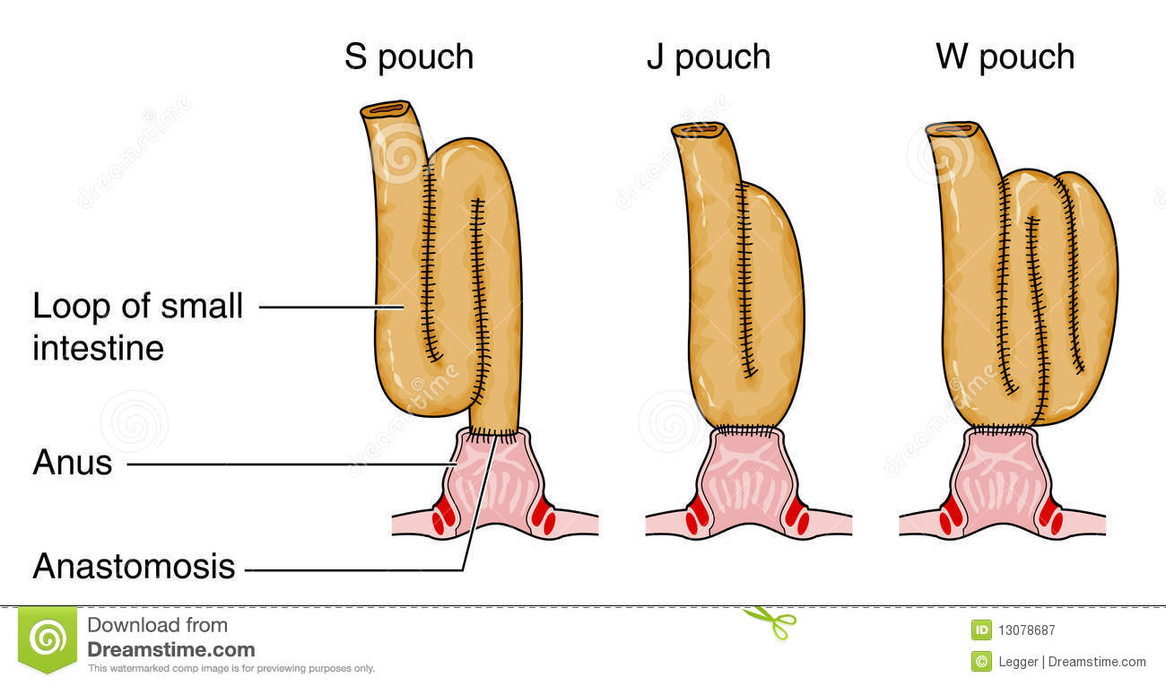 Formation Of Pouch Following Colostomy Stock Vector - Illustration ...