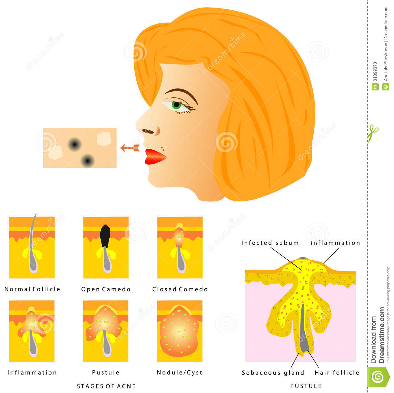 pimple face map with Stock Photo Formation Skin Acne Blackhead Pustule Stages White Background Image31899370 on Stock Image Woman Face Facial Treatment Image15921761 likewise Teen Skin Care Why Your Skin Breaks Out besides Stock Photo Woman Resting Massage Table Spa Side View Beautiful Young Man Background Health Image32429860 likewise Stock Photo Formation Skin Acne Blackhead Pustule Stages White Background Image31899370 together with Viruses.