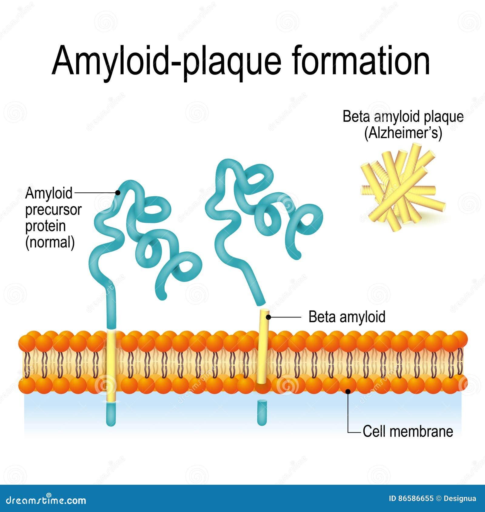Formazione della Amiloide-placca Malattia del ` s di Alzheimer