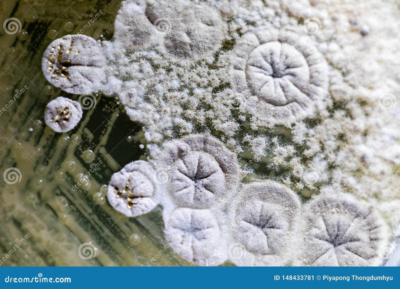 Formen Sie sch?nes, Kolonie von Eigenschaften der pilzartigen Form in der Kulturmediumplatte vom Labor