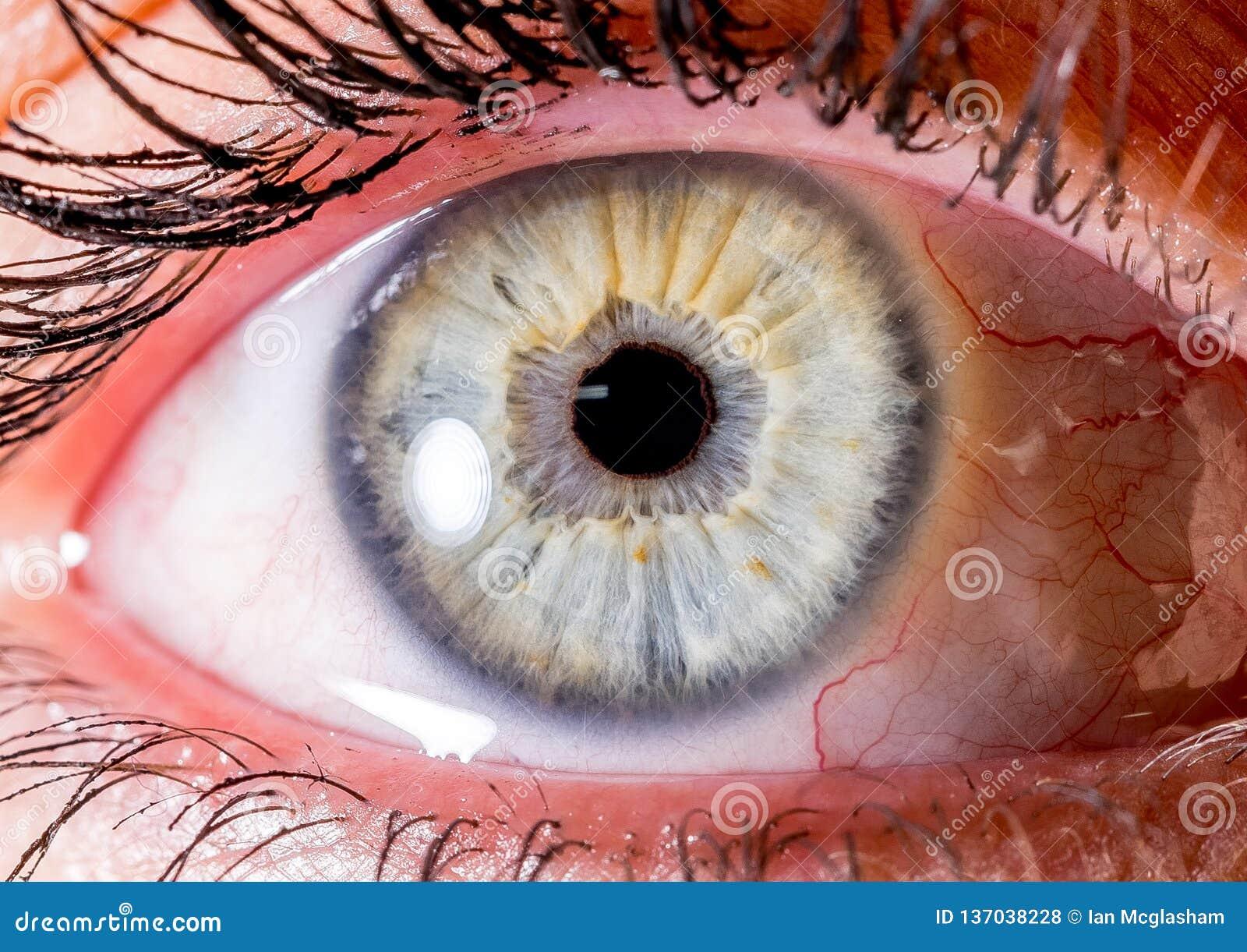 Fotografia dell iride Macro colpo vicino di un bulbo oculare molto blu-chiaro e bianco o giallo con il cratere