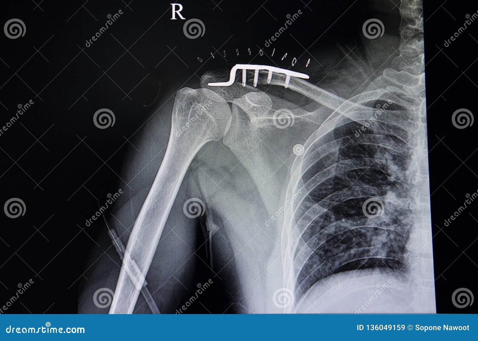 Fractura distal de la clavícula y tuberculosis pulmonar