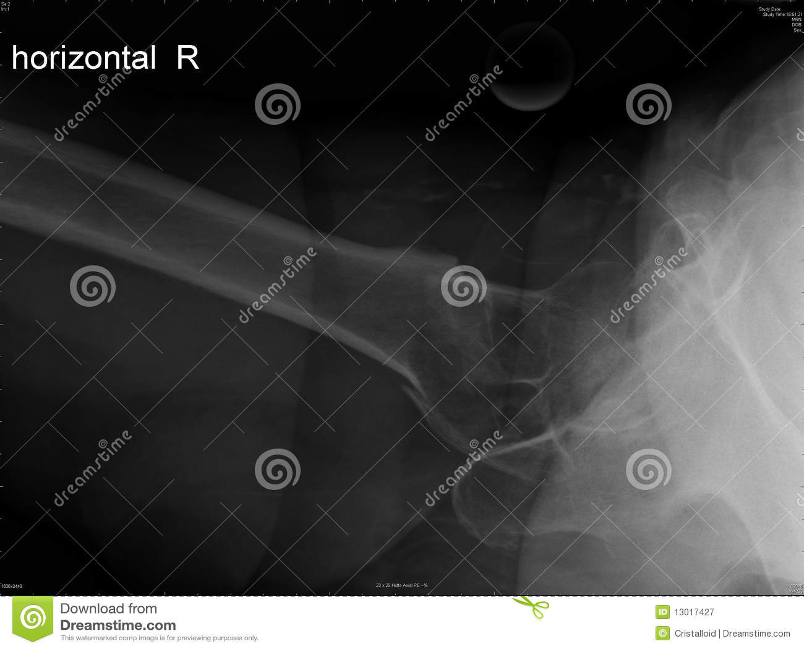 Fracture of femoral bone