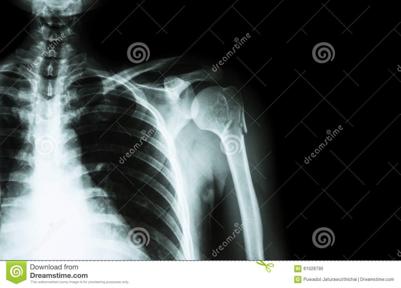 Crushed Human Bone : Shoulder ct fracture of humerus stock photo