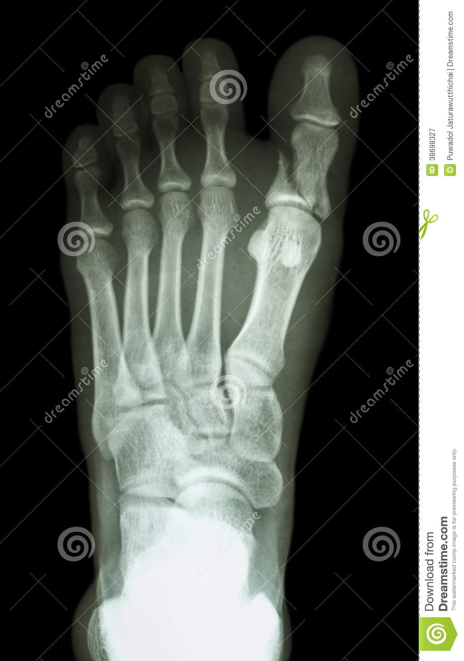 fracture proximal phalange at first toe royalty free stock photography image 38698327. Black Bedroom Furniture Sets. Home Design Ideas