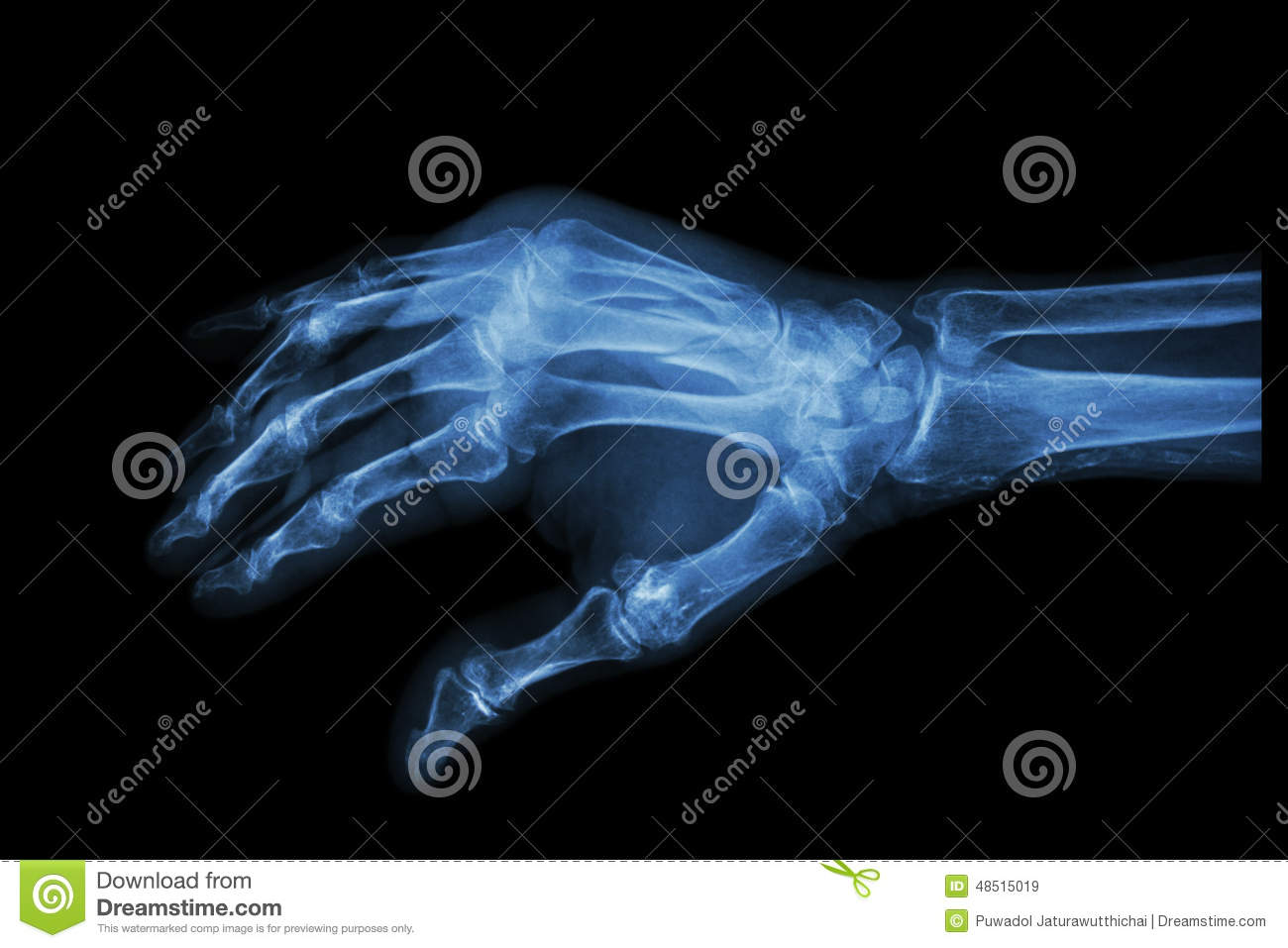 Fracture At 3rd And 4th Metacarpal Bone Stock Image - Image of human ...