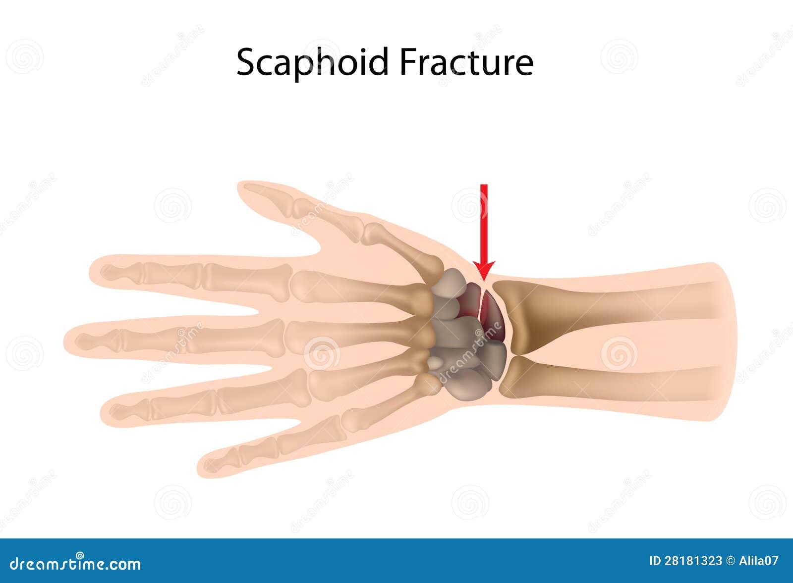 Fracture Scaphoid De Poignet Illustration de Vecteur - Illustration ...