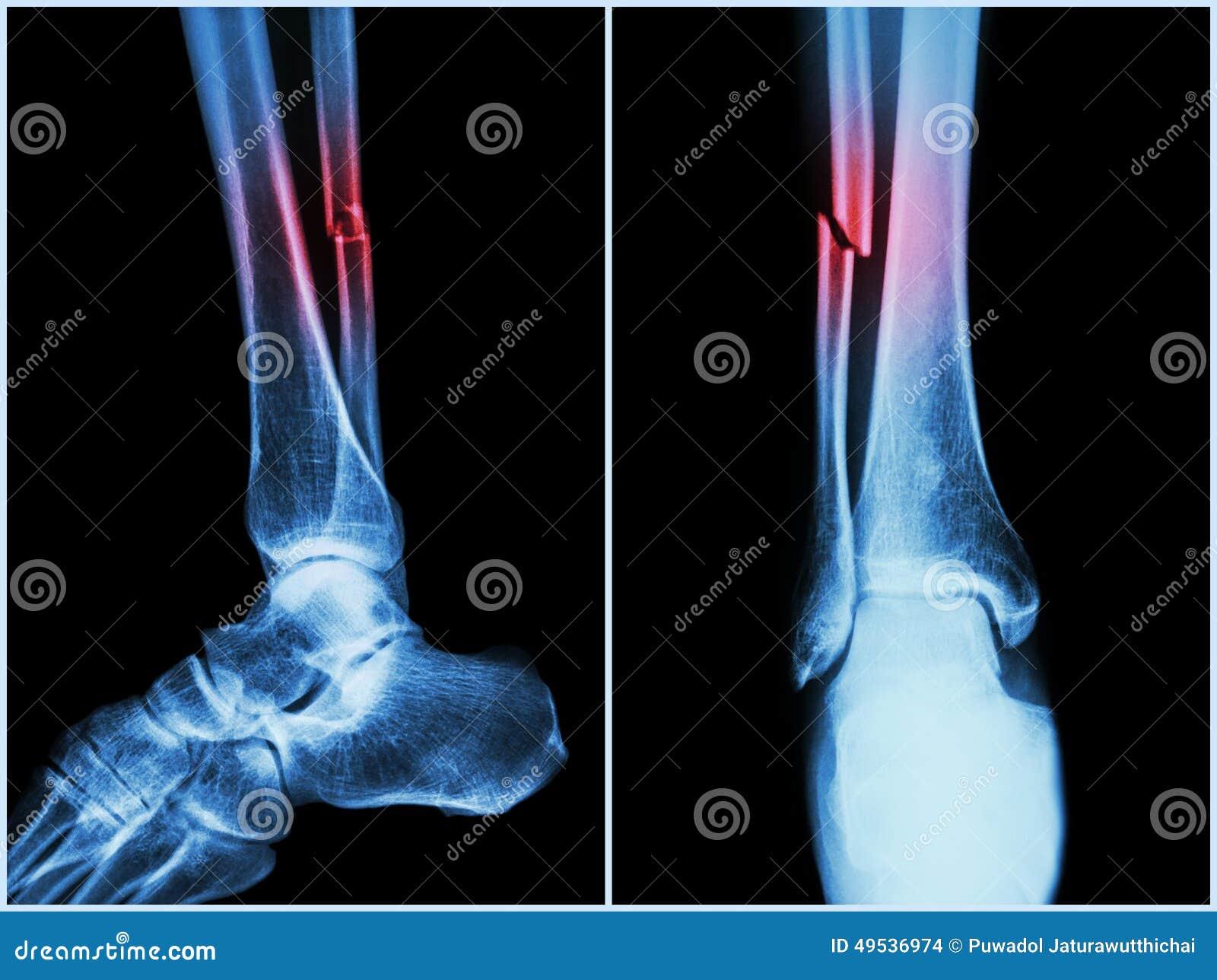 Scientific term for bone shaft