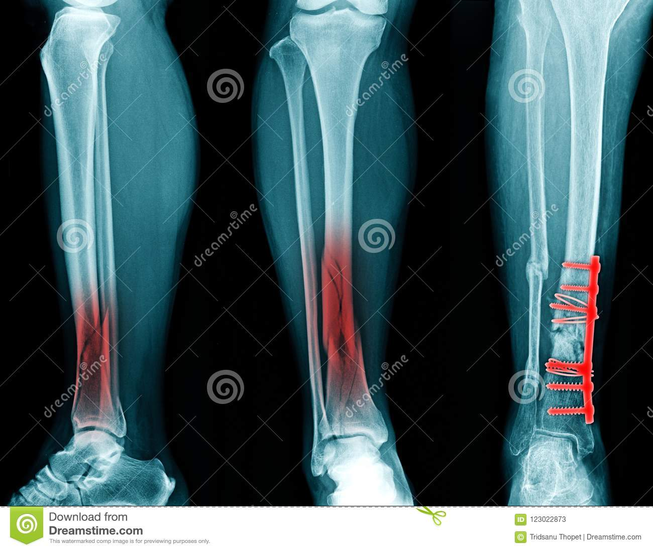 Fracture Tibia And Fixed Stock Image Image Of Black 123022873