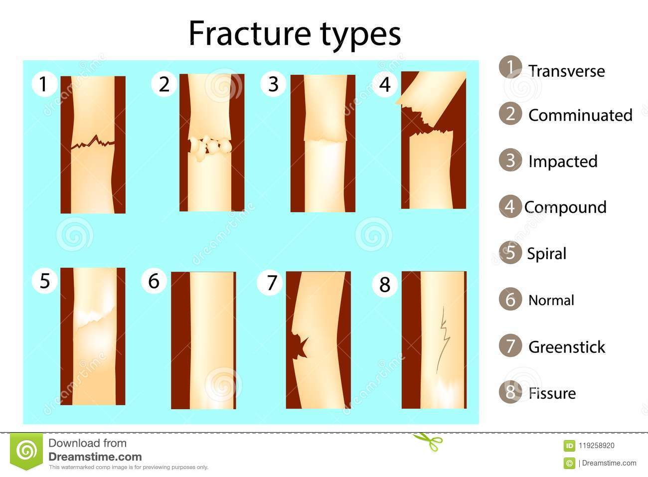 Fracture Types Of Bones Stock Vector Illustration Of Comminuted