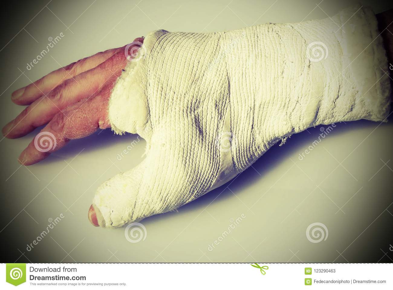 Fractured Hand Of The Man With The Orthopedic Plaster Cast