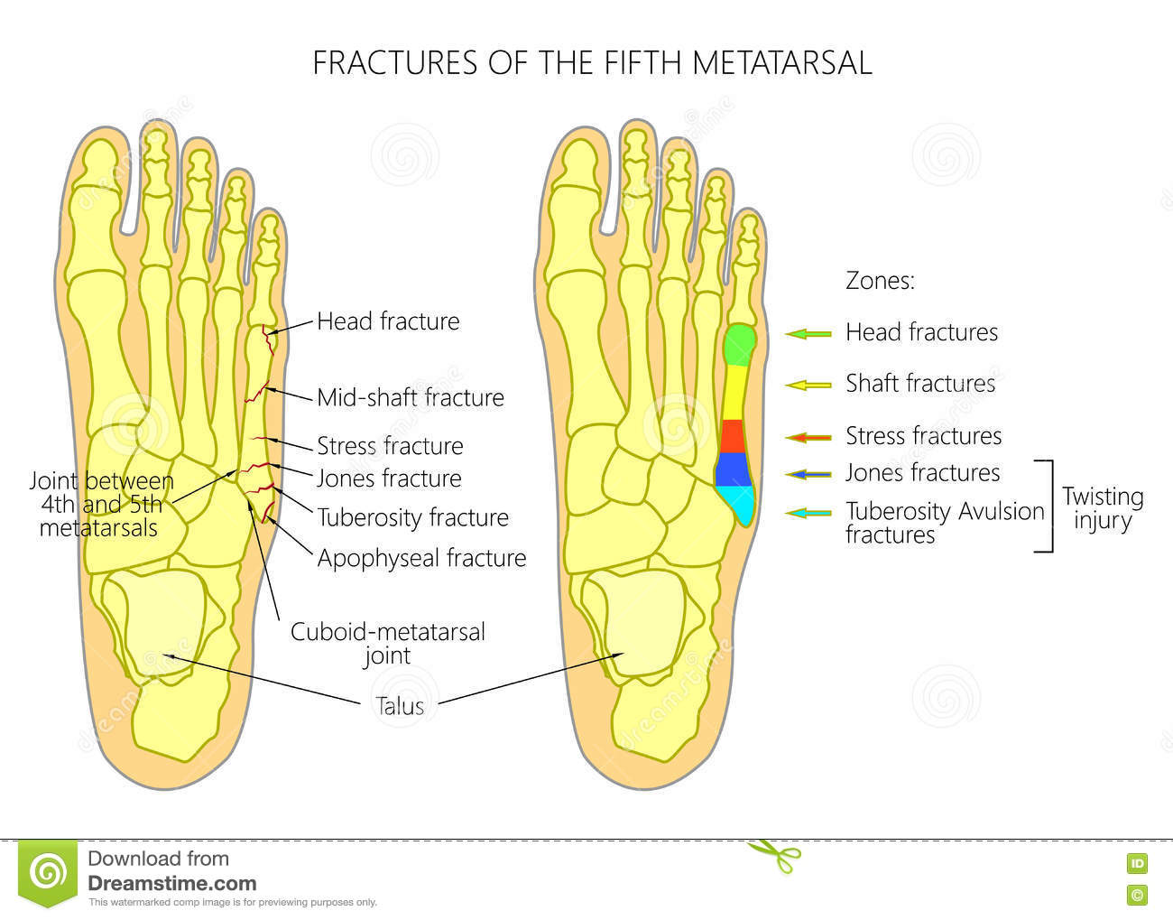 Fractures Of The 5th Metatarsal Stock Vector - Image: 77256983