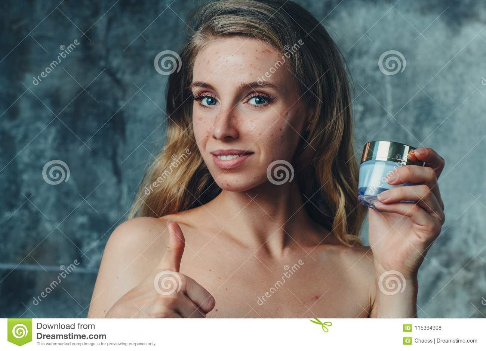 Framsidakräm som ska hjälpas med akne