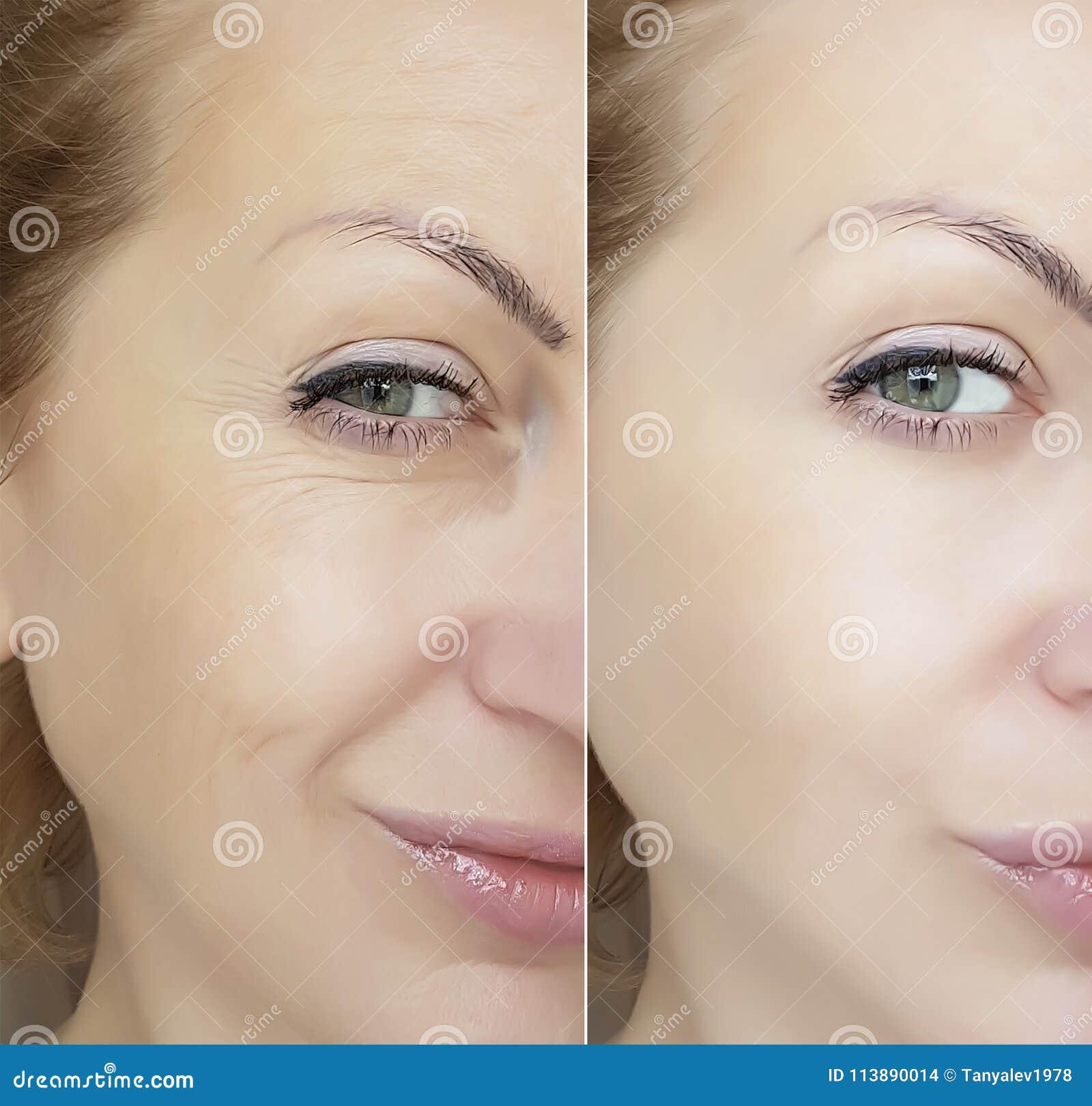 Framsidakvinnan rynkar ögonkontrastregenerering före och efter