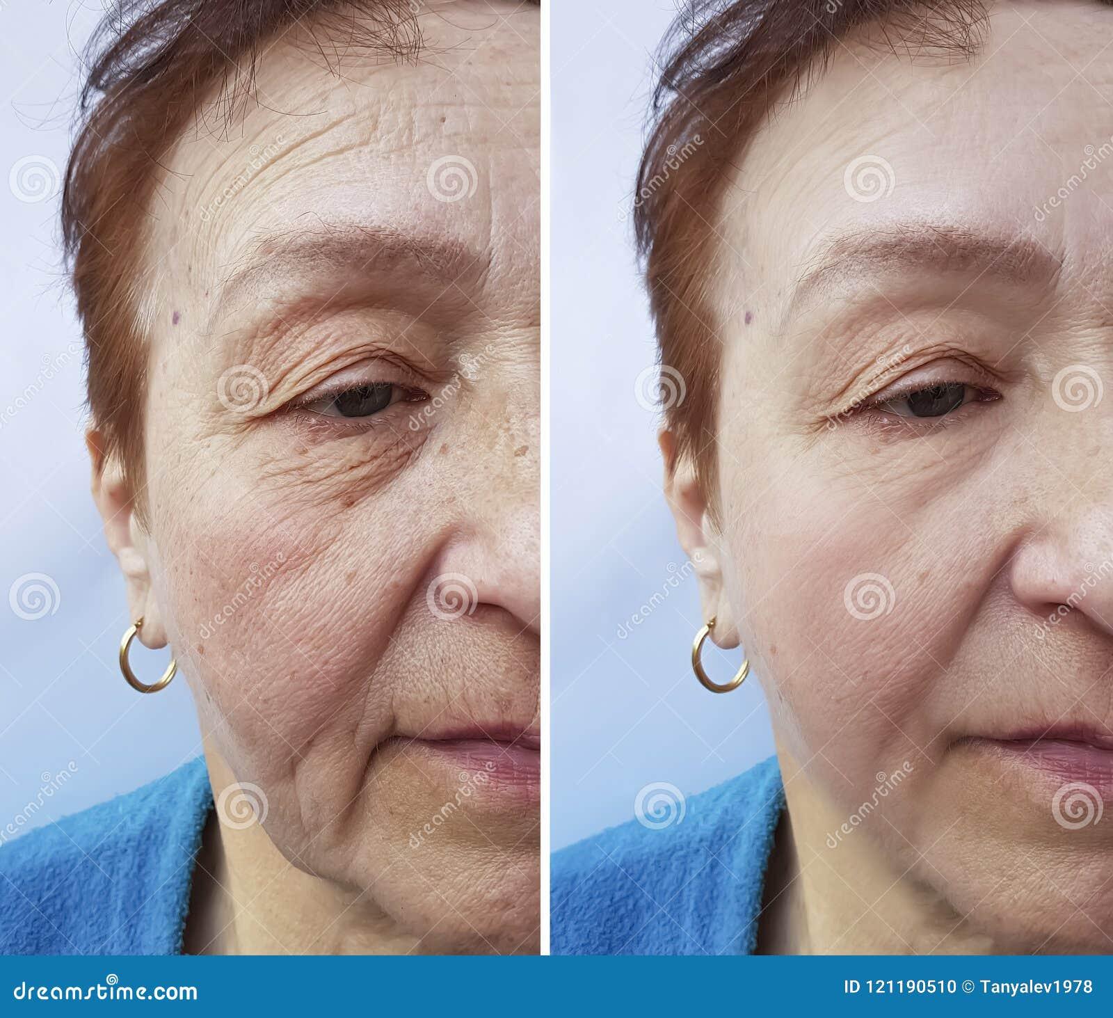 Framsidan av en äldre kvinna rynkar att hydratisera före och efter tillvägagångssätt