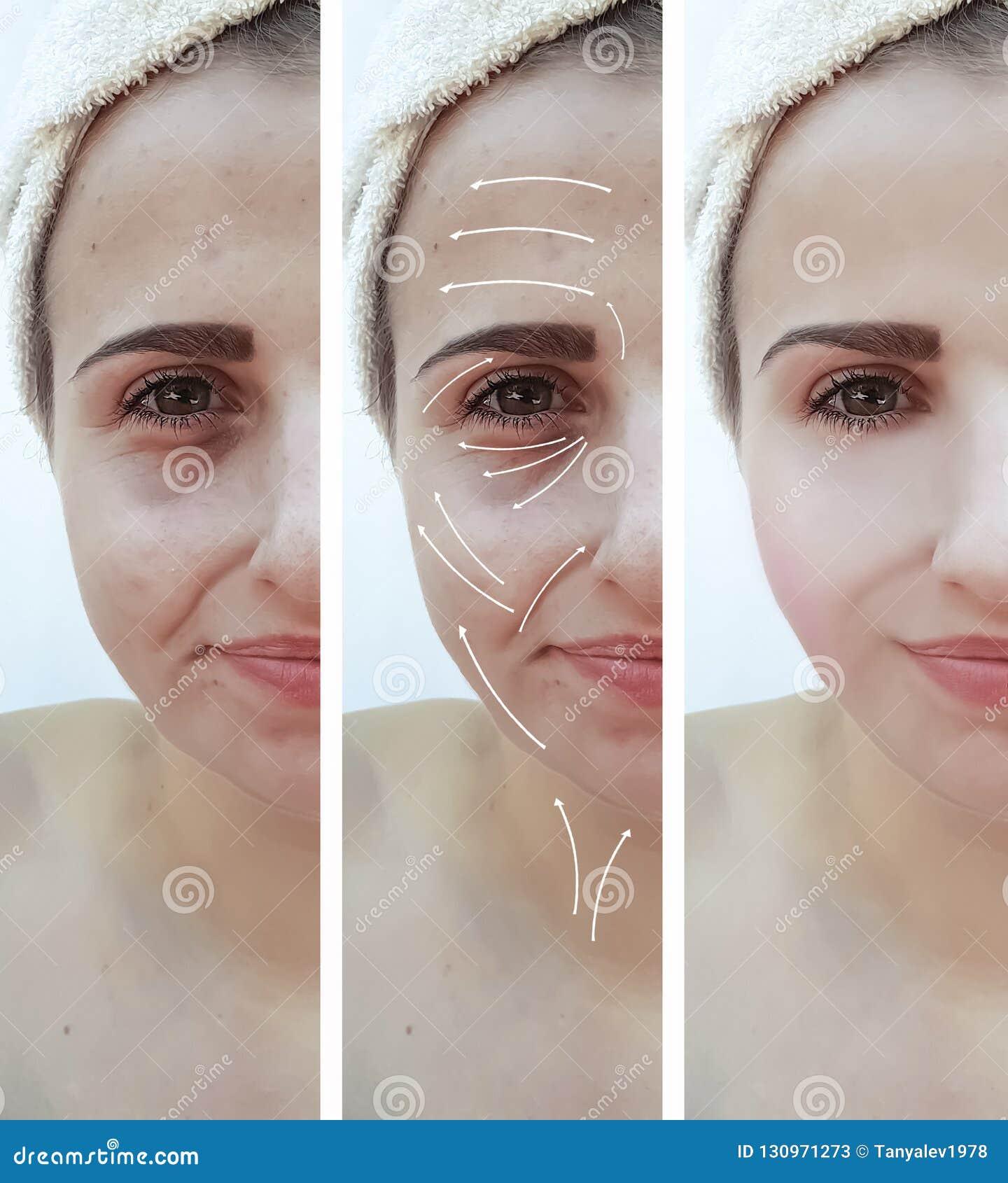 85fdbed32758 Frau Knittert Geschwollenes Effekt Cosmetologybehandlung ...