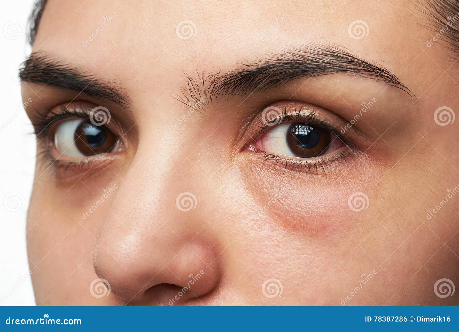 Frau mit rotem Auge stockfoto. Bild von frauen, leute
