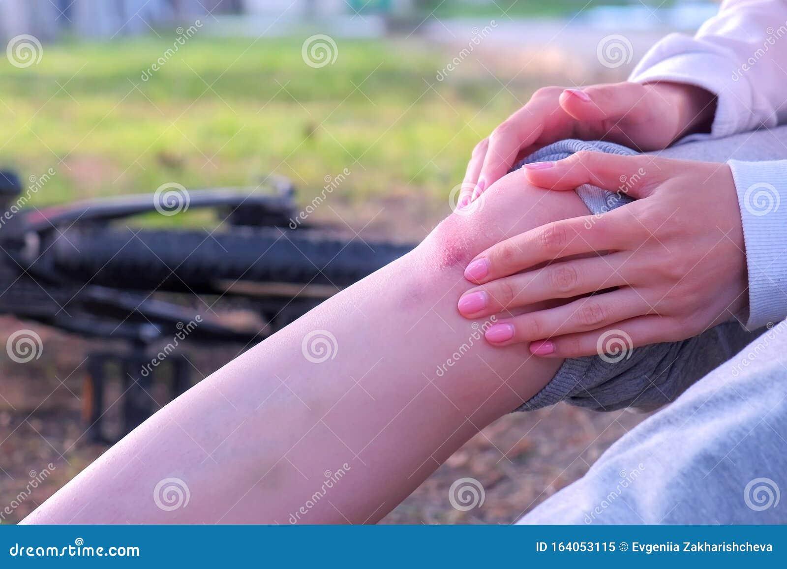Frauen Untersuchen Schmerzen Auf Dem Knie Nach Dem