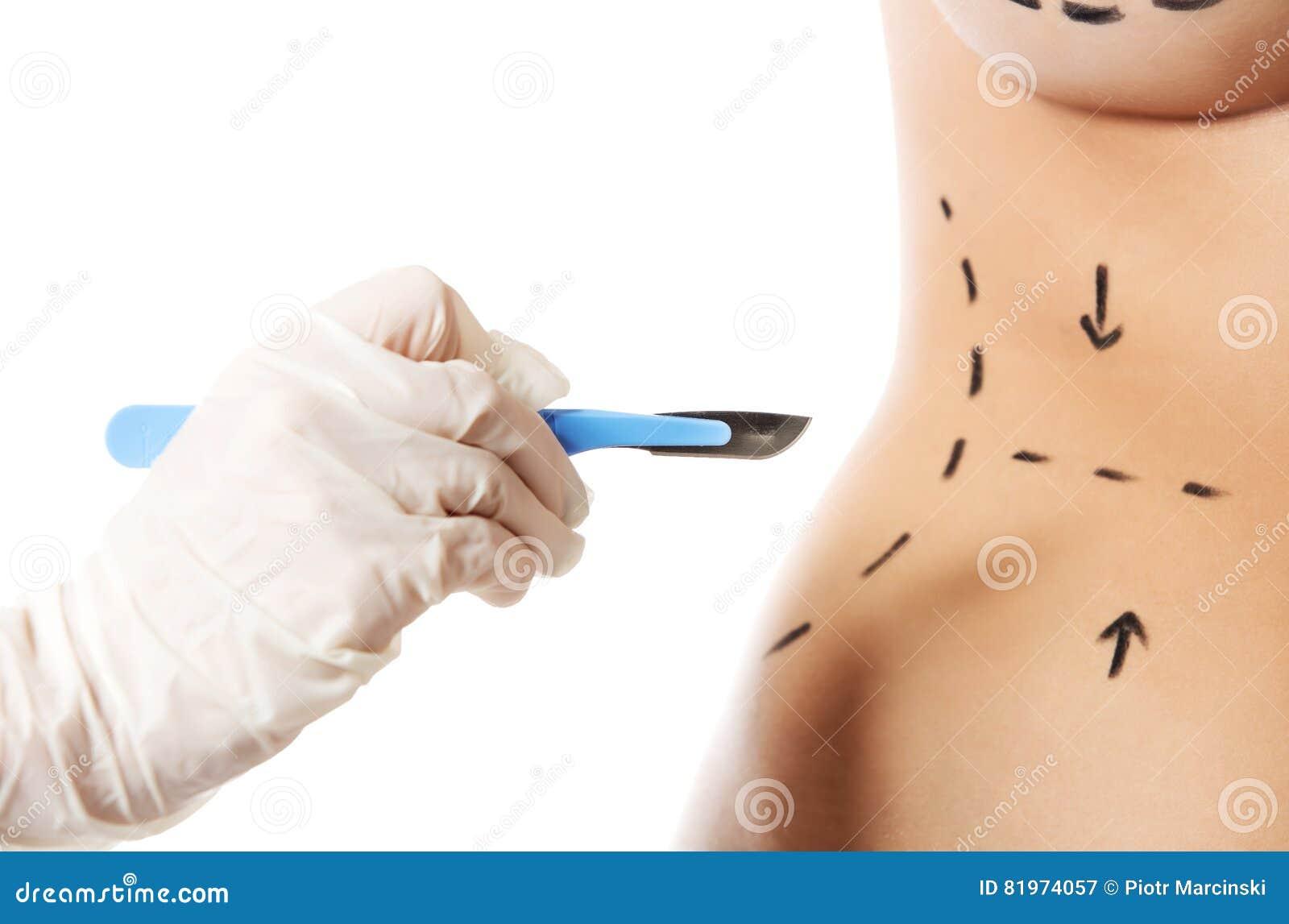Frauenkörper heraus markiert für Schönheitschirurgie