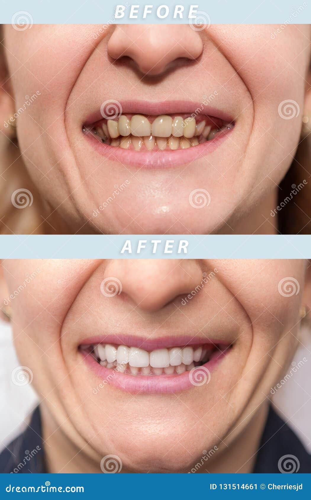 Frauenzähne vor und nach zahnmedizinischer Behandlung Glückliche lächelnde Frau