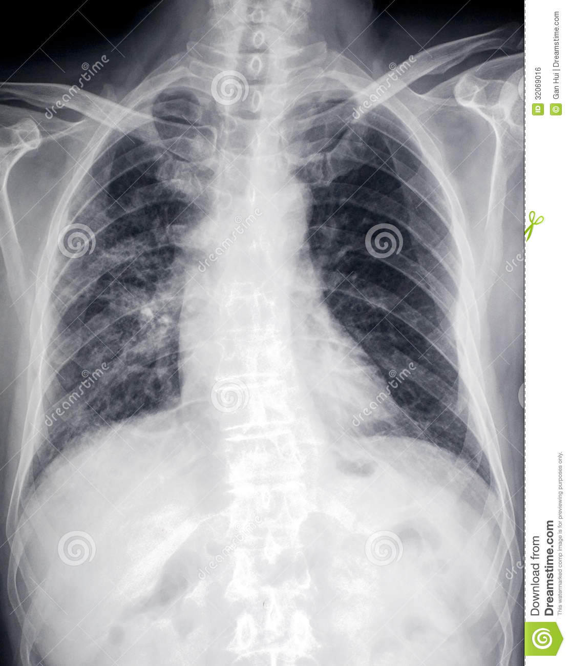 Lung Disease:front X-ray Image Of Heart And Ches Royalty