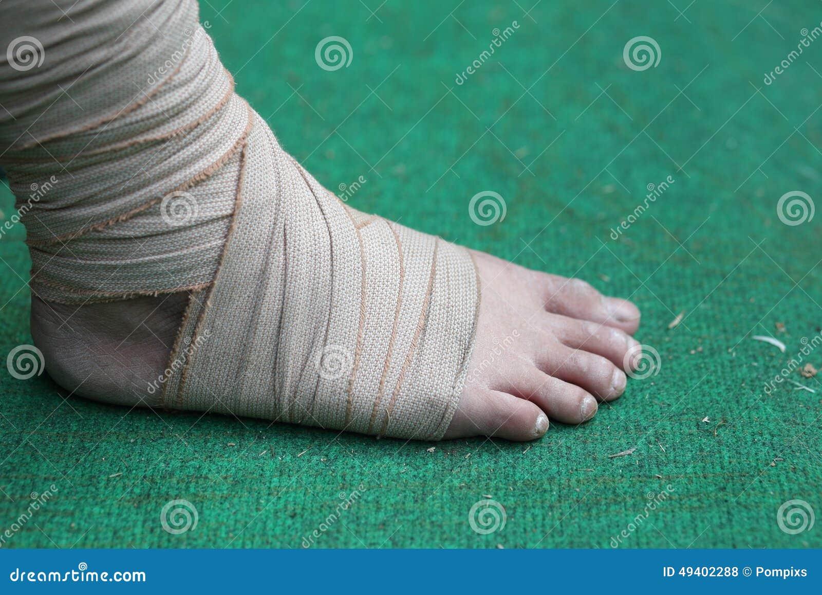 Download Fuß Und Knöchel Verletzt Mit Verband Stockfoto - Bild von verstauchung, nahaufnahme: 49402288