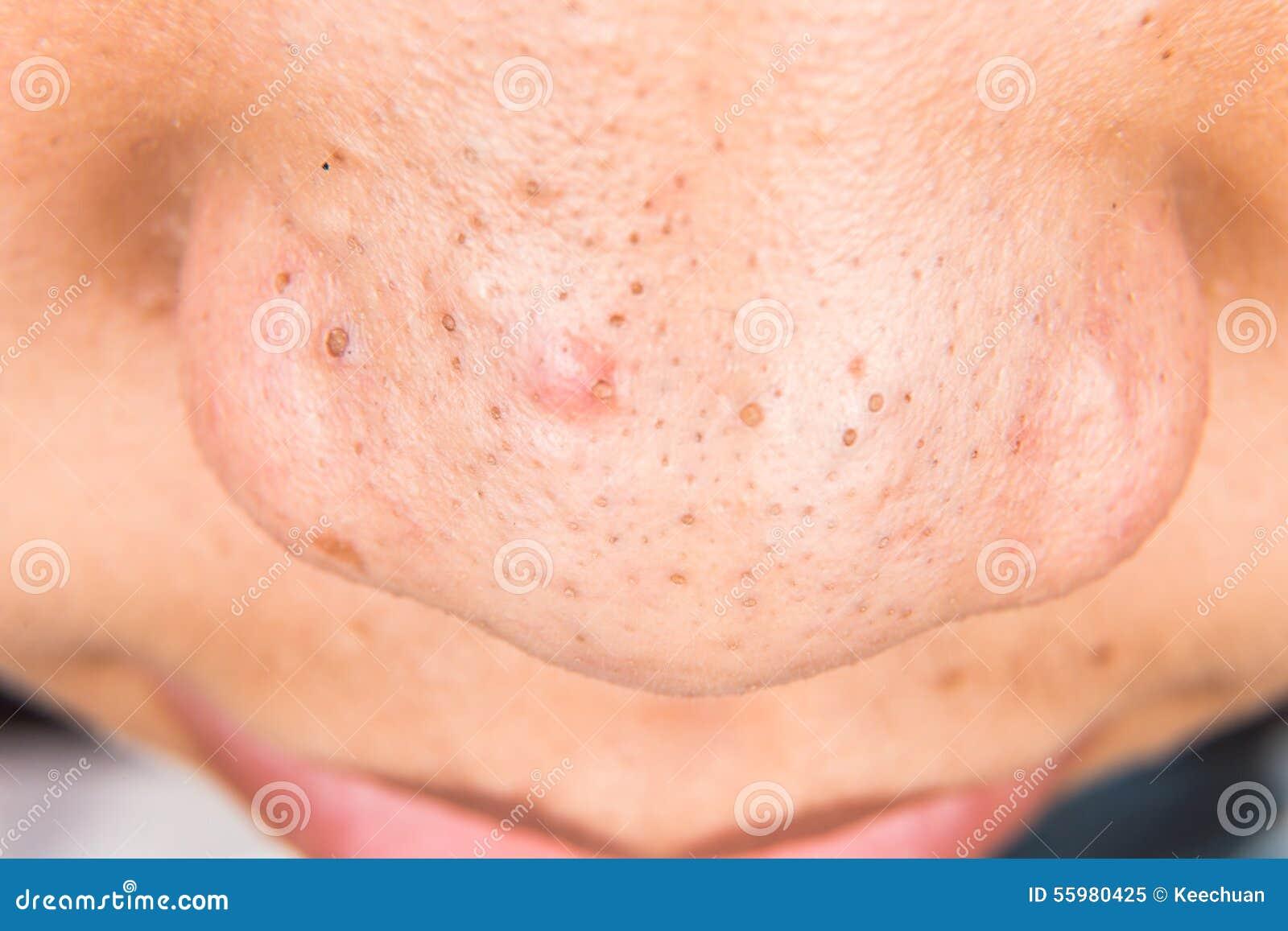 vita pormaskar på näsan