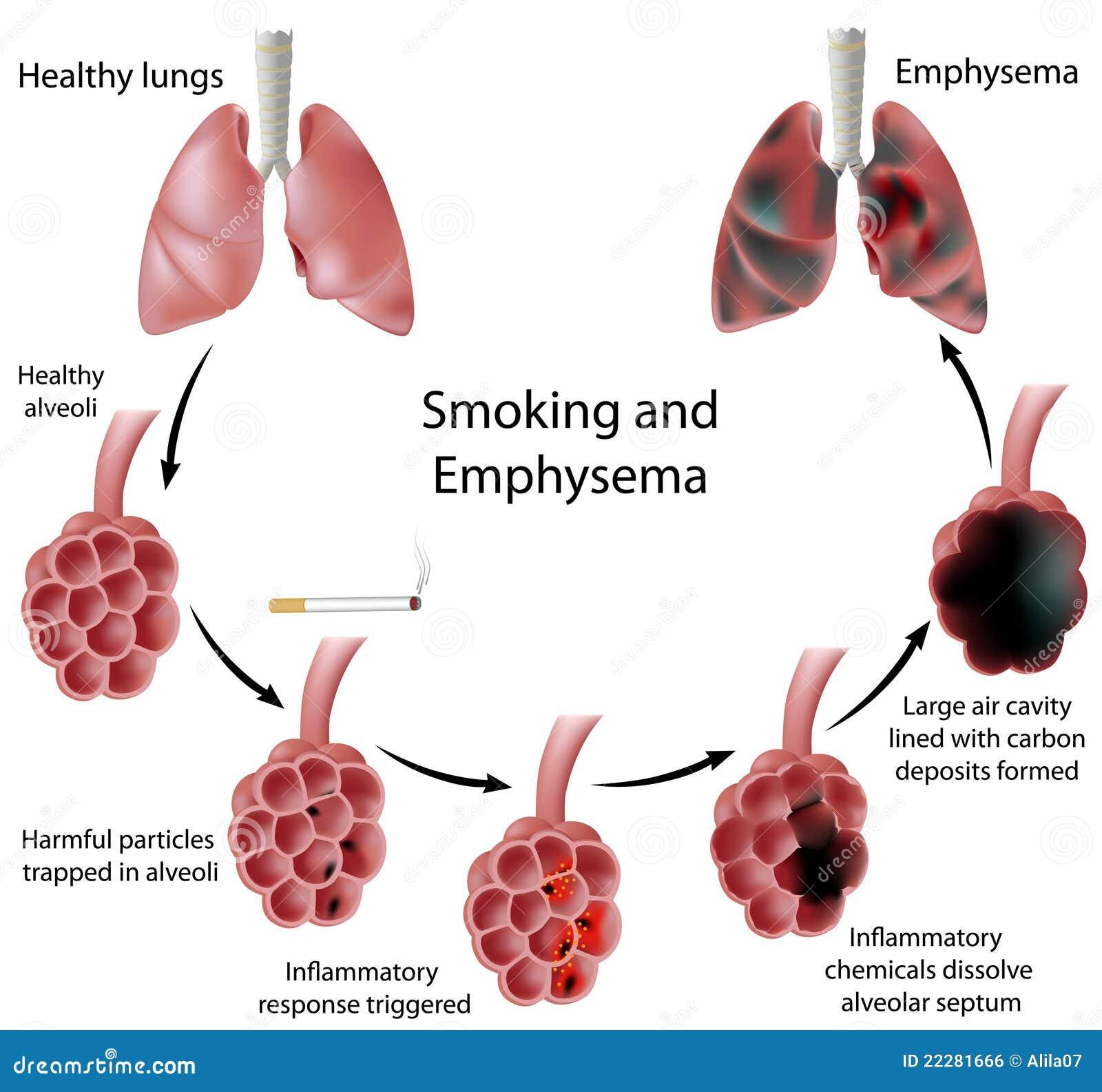 Fumage et emphysème