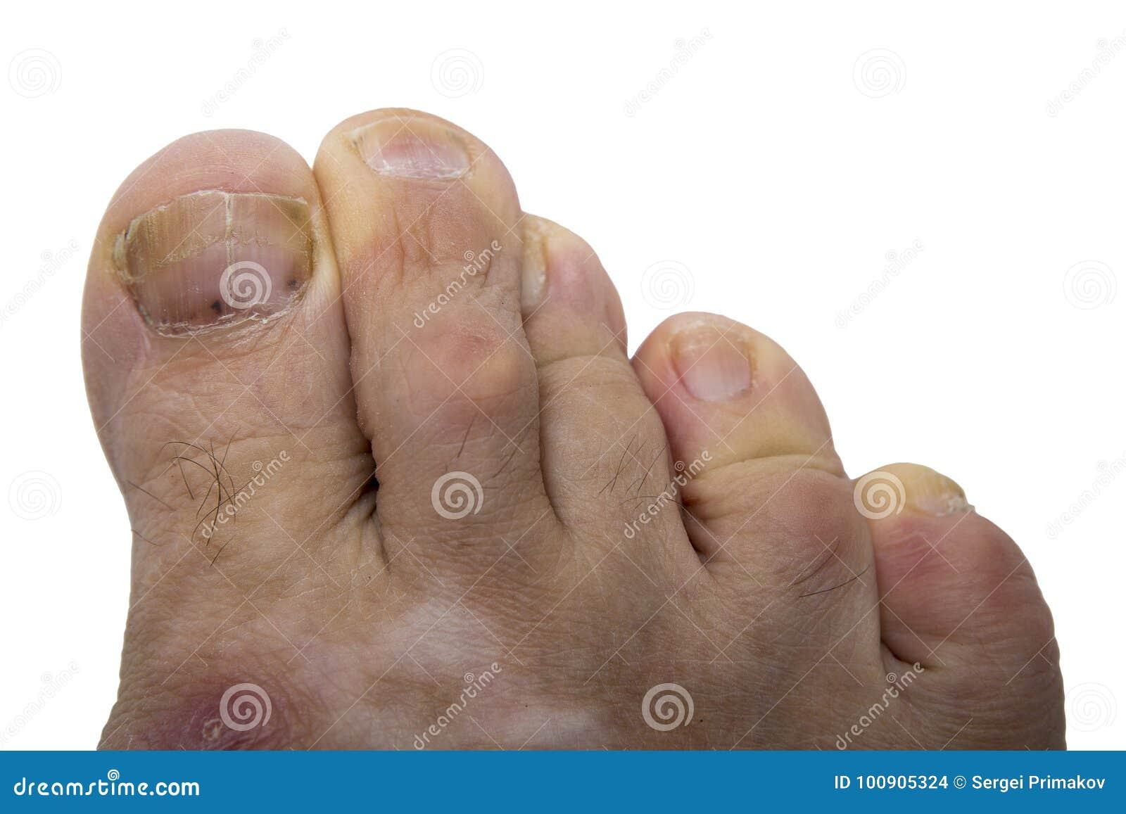 Nail fungus, melanoma stock photo. Image of nail, nails - 100905324