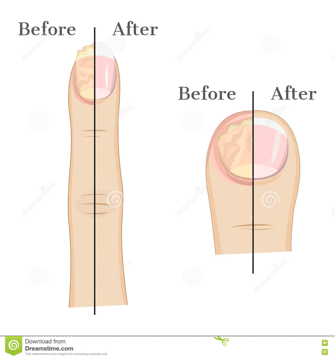 Fungal infection of the nail stock vector illustration of fungal infection of the nail pooptronica Choice Image