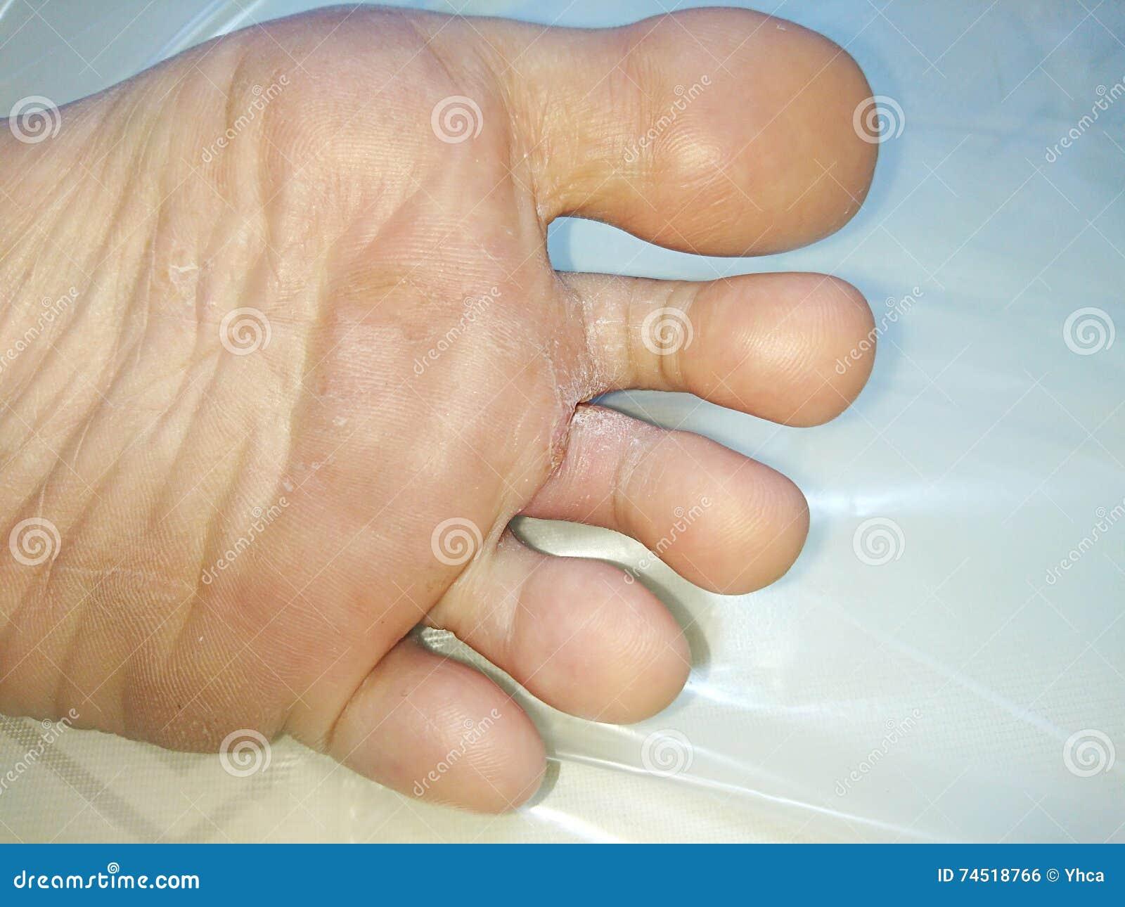 Fungi Infection Stock Photo - Image: 74518766