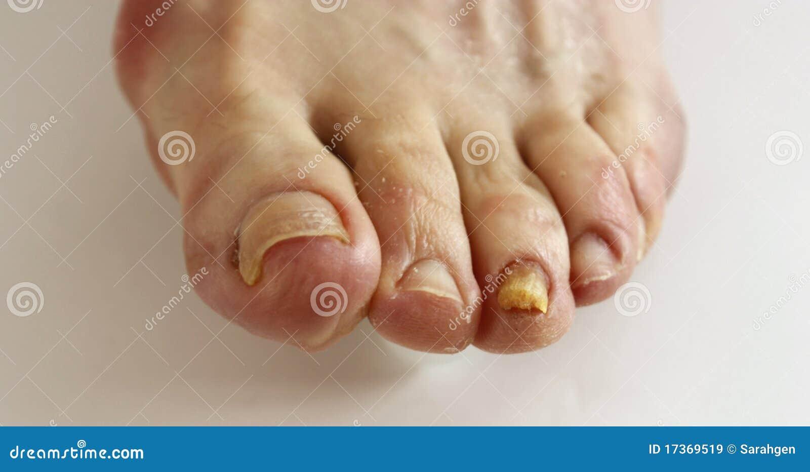 Mezzi per trattamento di un fungo di unghie che sopportano il prezzo