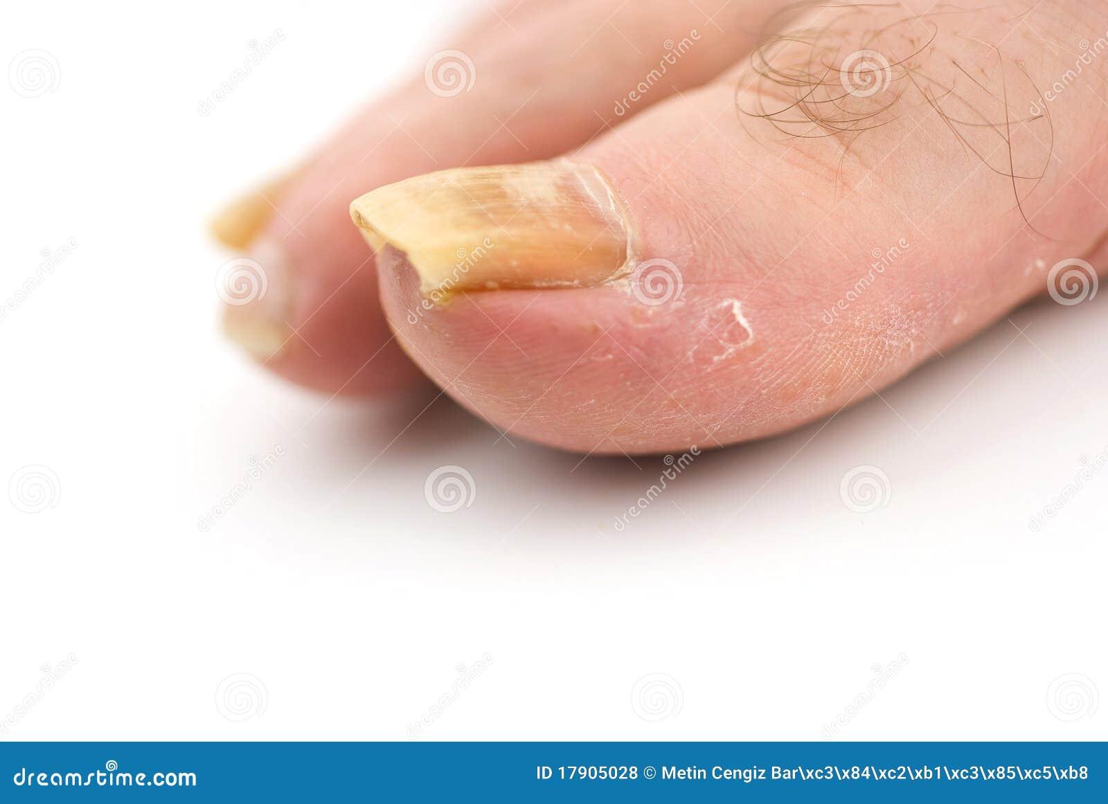 Trattamento di unghie che stanno dopo un trauma