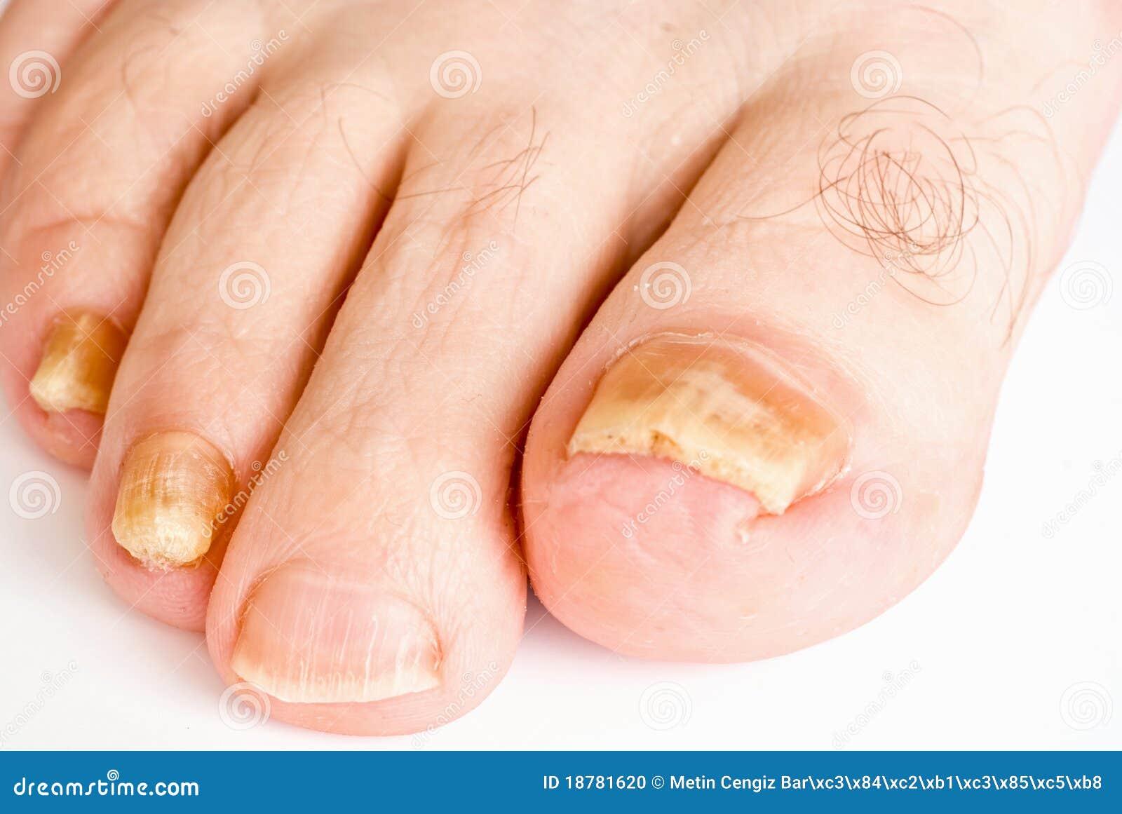 Unguenti non costosi a un fungo di piede