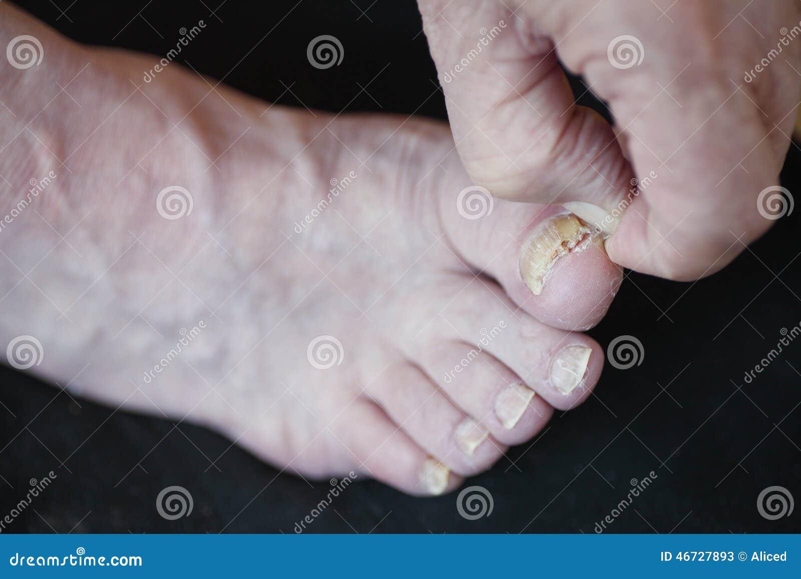 Metta un fungo a dieta su una gamba