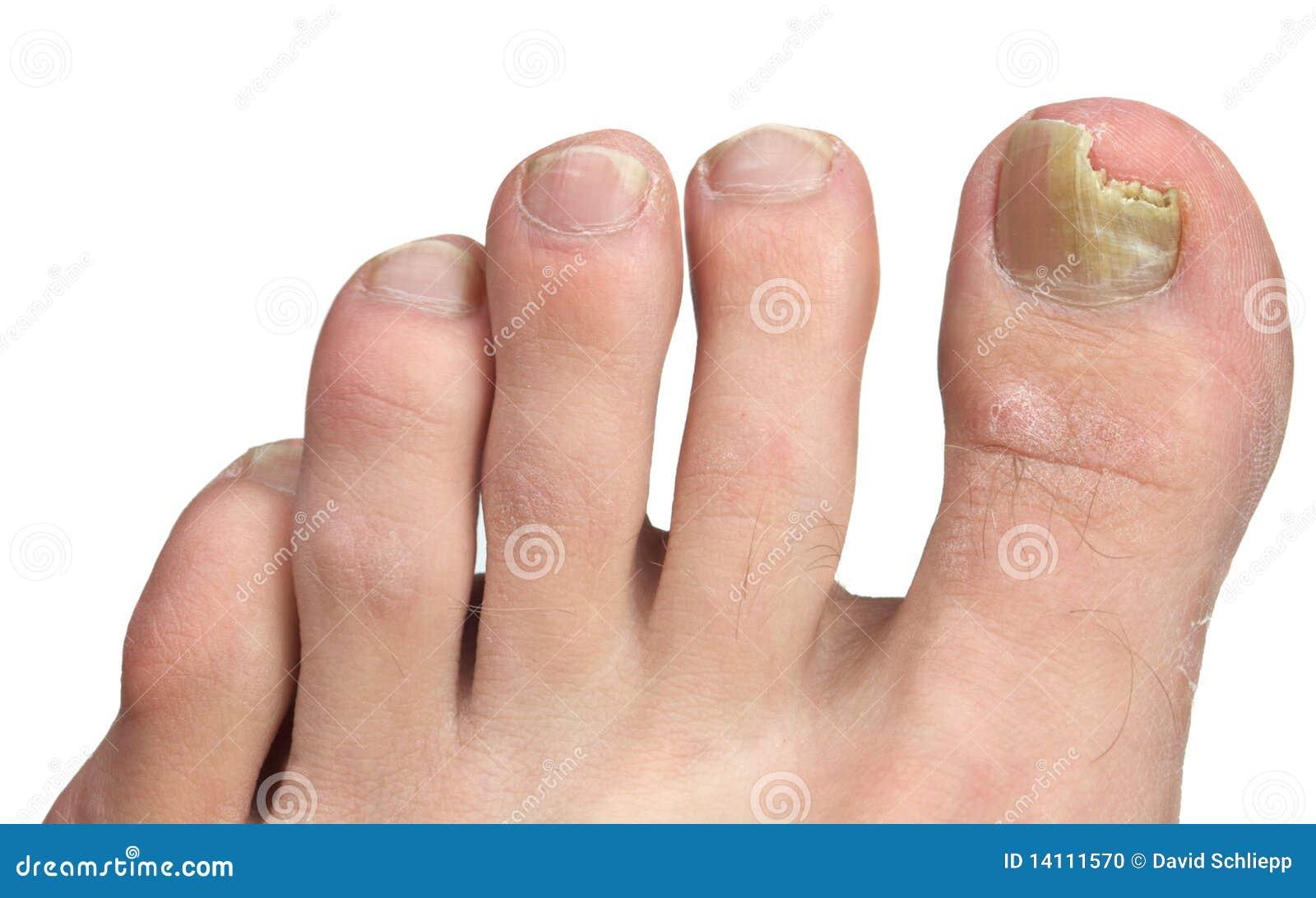 Прелости между пальцев ног 6 фотография