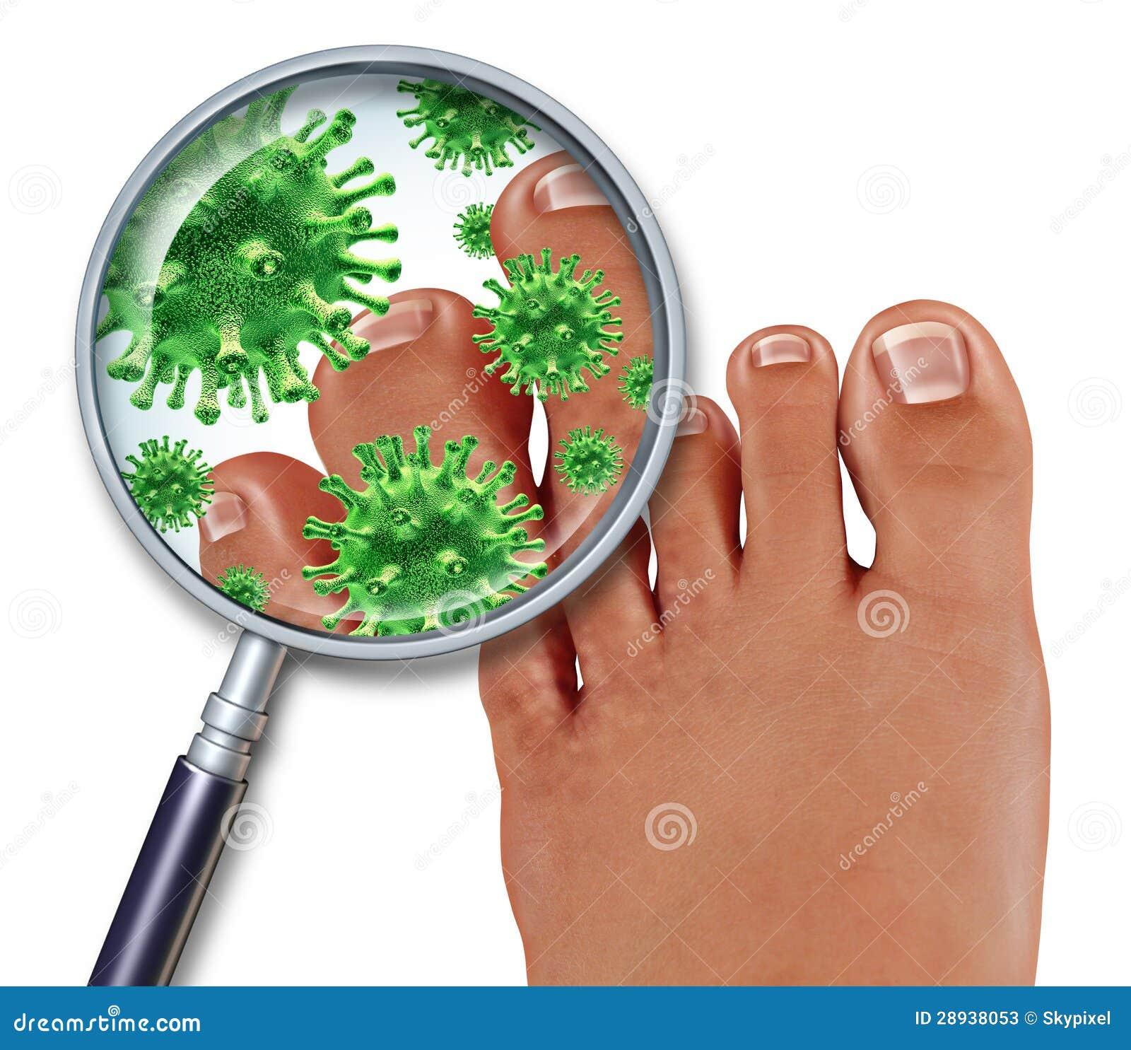 Eczema e fungo di piede