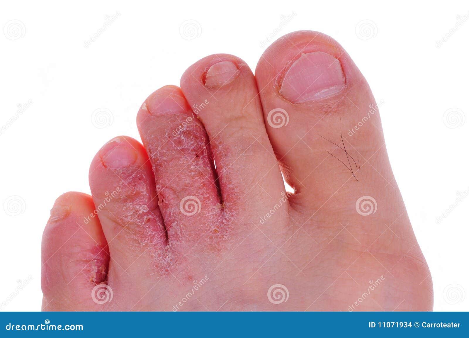 Se il fungo di unghie può esser trasmesso attraverso biancheria da letto